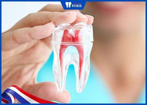 trám răng có phải lấy tủy không