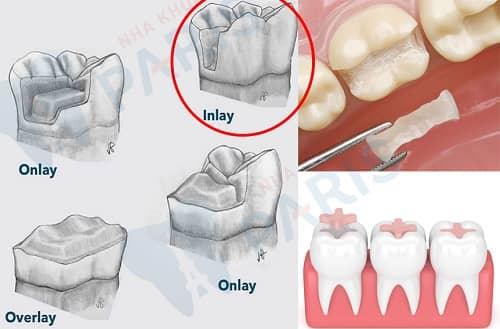trám răng inlay là gì