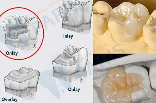 trám răng onlay là gì