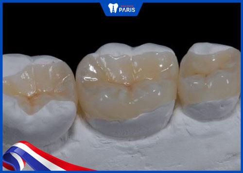 Trám răng bao lâu
