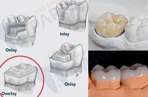 trám răng overlay là gì