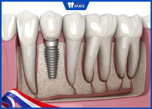 Răng sâu nặng có trám được không