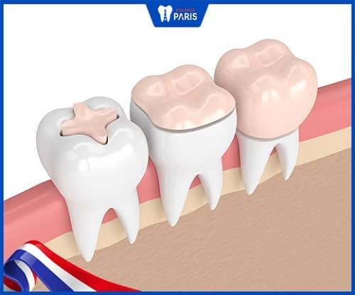 ưu điểm khi trám răng inlay/onlay