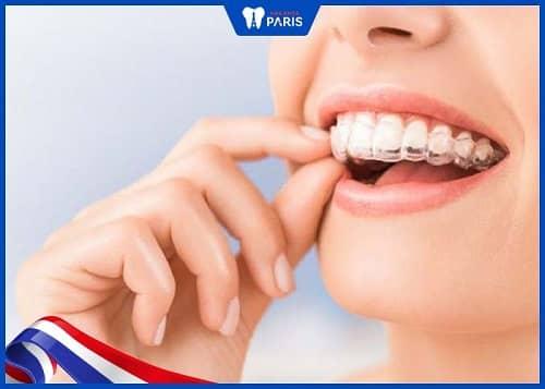 ưu điểm của niềng răng 3d Clear