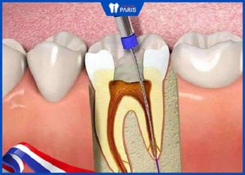 ưu điểm khi trám răng lấy tủy