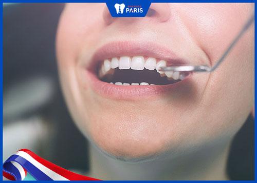 tại sao răng sứ bị mẻ