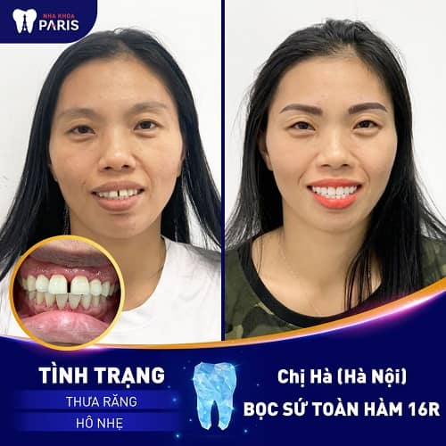 Chỉnh răng hô thẩm mỹ