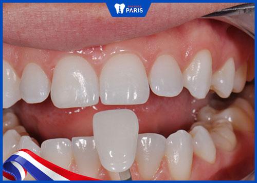 chữa răng hô nhẹ