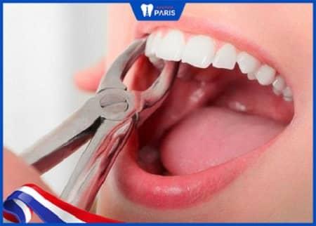 chi phí niềng răng vầu có nhổ răng