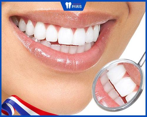 cách ngăn răng sứ titan bị đen viền
