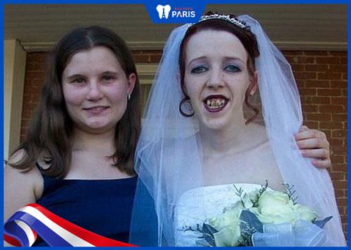 răng xấu chụp ảnh cưới