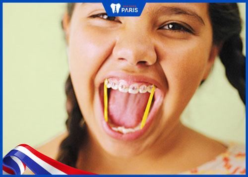niềng răng hô hàm trên bao lâu