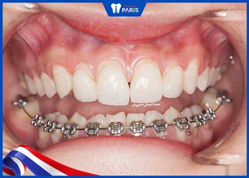 niềng răng thưa 1 hàm giá bao nhiêu tiền