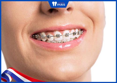 nhược điểm niềng răng mắc cài kim loại dây tự buộc