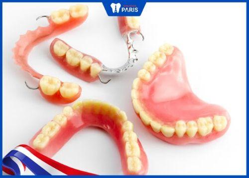 trồng răng số 6 với hàm tháo lắp