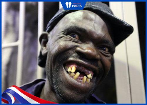 hình ảnh răng hô xấu