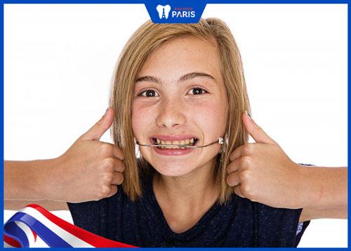 niềng răng bị hô hàm cho trẻ em
