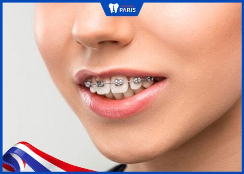 có niềng răng hô hàm được không