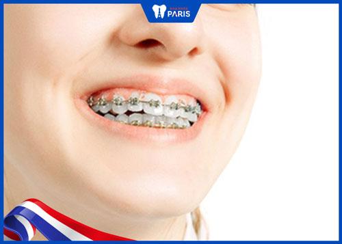 hô hàm trên niềng răng có hiệu quả không