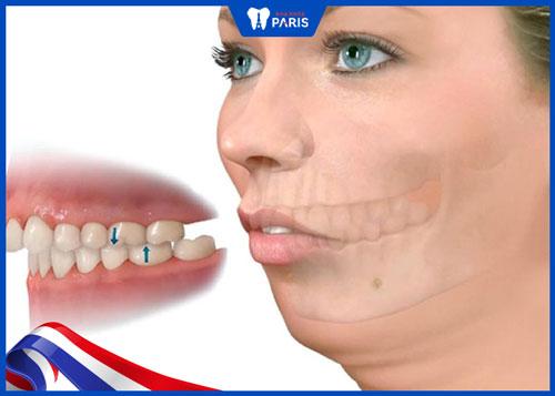 Hình ảnh răng hô