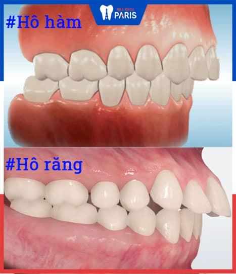 hô hàm và hô răng