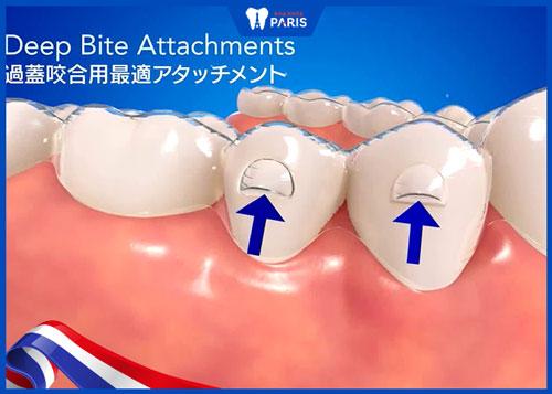 Niềng răng vô hình cho điều trị khớp cắn sâu