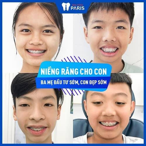 giá niềng răng cho trẻ 10 tuổi