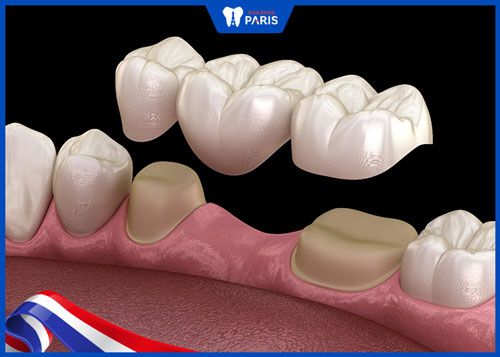 trồng lại răng sau khi nhổ với cầu răng sứ