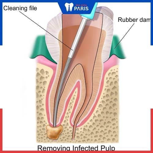 lấy tủy răng có đau không