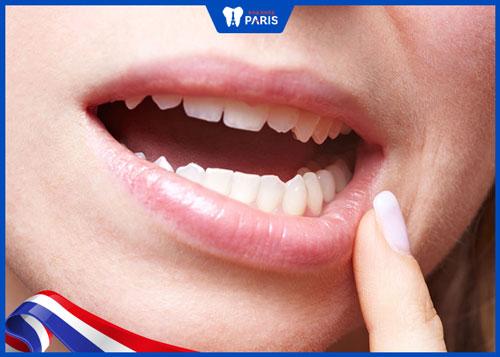 cách làm bớt đau khi niềng răng