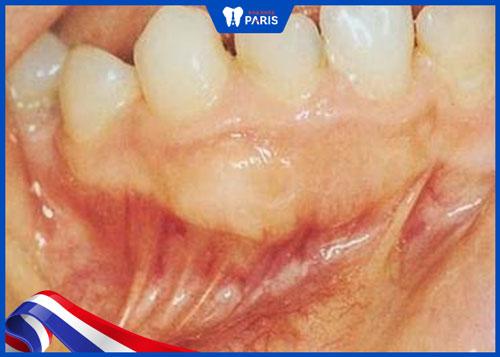 Bệnh mọc răng thừa