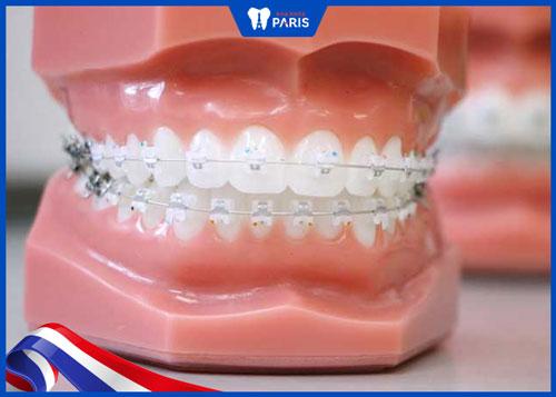 Nhược điểm của niềng răng sứ tự buộc