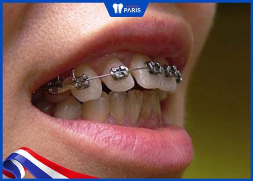 tại sao niềng răng hàm dưới và trên khác thời điểm