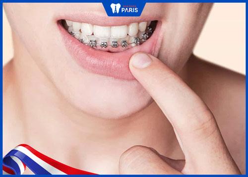 niềng răng 1 hàm dưới