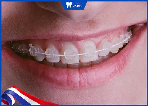 những hàm răng xấu nhất thế giới
