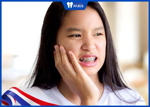 Niềng răng bao lâu thì hết đau