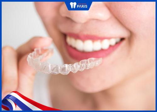 niềng răng không mắc cài mất bao lâu