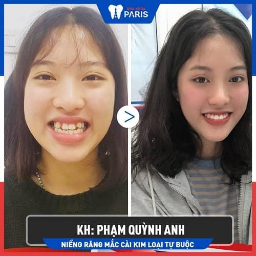 niềng răng khớp cắn ngược có hiệu quả không