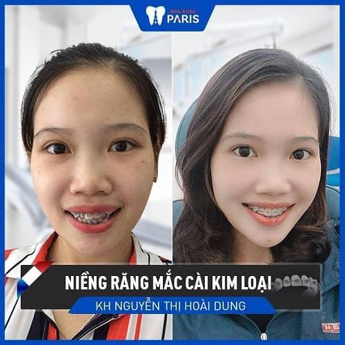 niềng răng hàm dưới hết bao nhiêu tiền