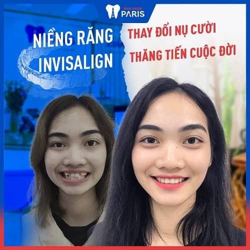trước và sau khi niềng răng trong suốt