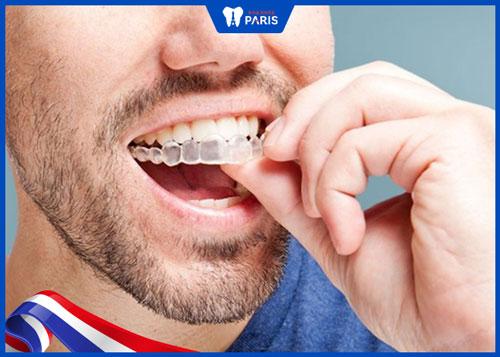 Mua niềng răng vô hình invisalign