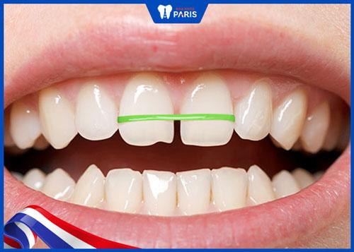 Cách làm răng thưa khít lại tại nhà