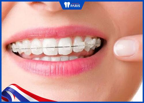 ưu điểm của niềng răng mắc cài sứ tự buộc