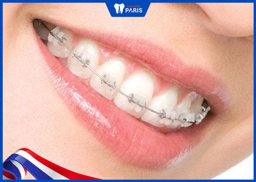 lợi ích khi dùng niềng răng mắc cài sứ thông minh