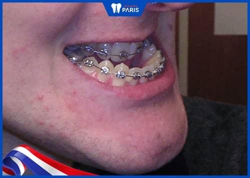 phân biệt răng móm và hàm móm