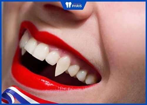 răng khểnh xấu