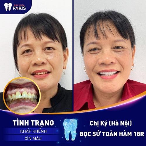 răng sứ titan bị đen viền nướu khắc phục thế nào
