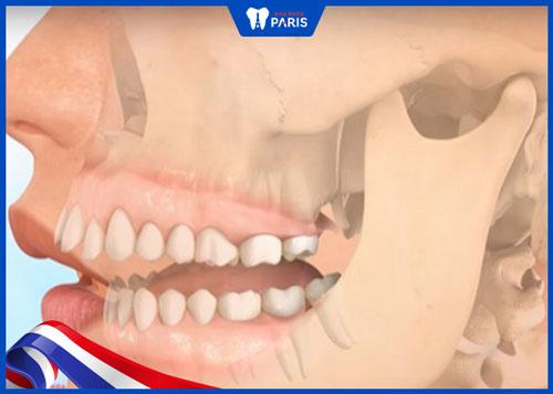 răng hô nhẹ
