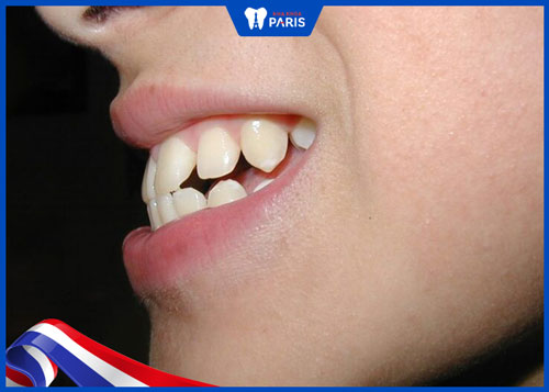 răng hô nhẹ có ảnh hưởng gì
