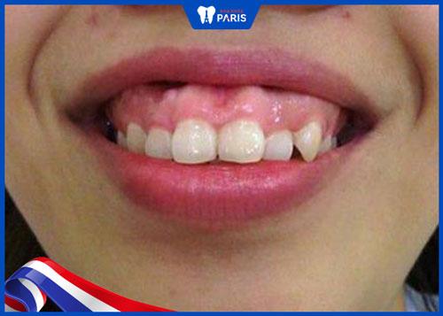 không tự tin vì răng xấu